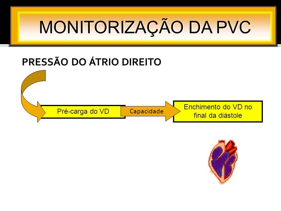 PRESSÃO DO ÁTRIO DIREITO MONITORIZAÇÃO DA PVC Pré-carga do VD Enchimento do VD no final da diástole Capacidade