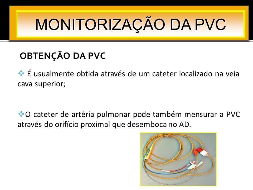 OBTENÇÃO DA PVC MONITORIZAÇÃO DA PVC É usualmente obtida através de um cateter localizado na veia cava superior; O cateter de artéria pulmonar pode ta