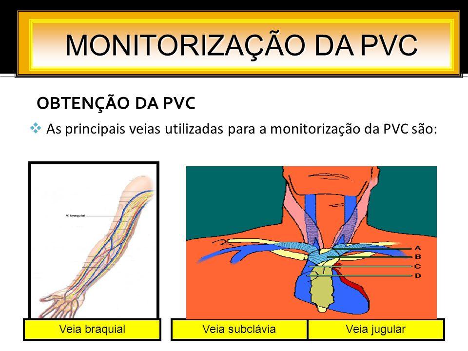 OBTENÇÃO DA PVC MONITORIZAÇÃO DA PVC As principais veias utilizadas para a monitorização da PVC são: Veia braquialVeia subcláviaVeia jugular