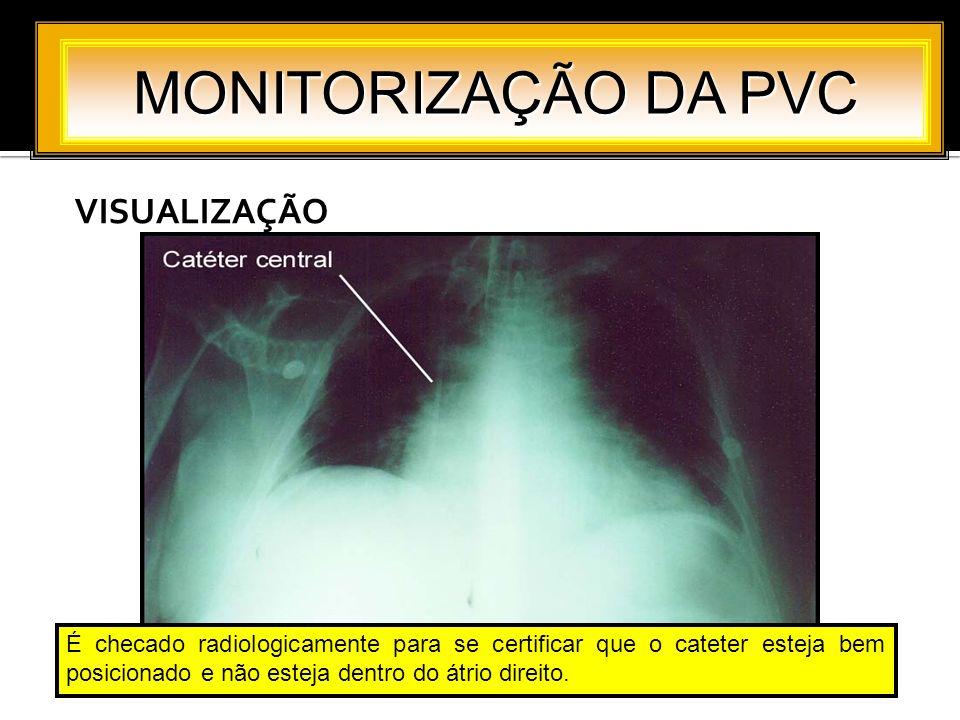 VISUALIZAÇÃO MONITORIZAÇÃO DA PVC É checado radiologicamente para se certificar que o cateter esteja bem posicionado e não esteja dentro do átrio dire