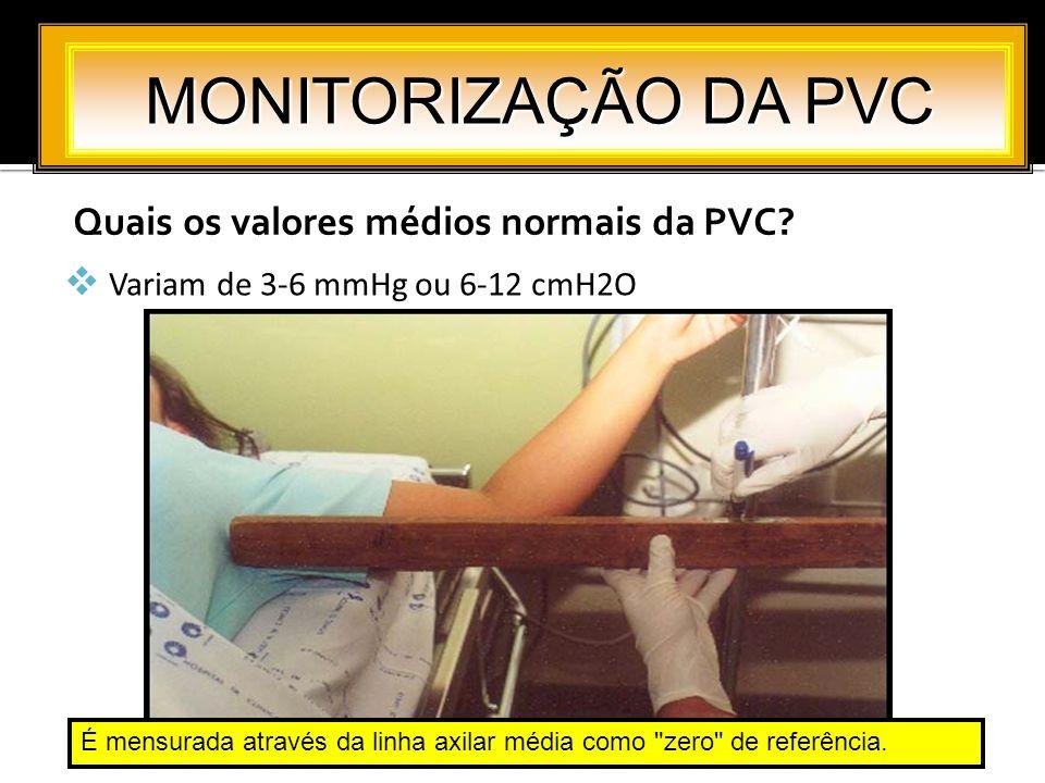 Quais os valores médios normais da PVC? MONITORIZAÇÃO DA PVC Variam de 3-6 mmHg ou 6-12 cmH2O É mensurada através da linha axilar média como