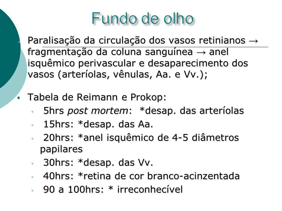 Paralisação da circulação dos vasos retinianos fragmentação da coluna sanguínea anel isquêmico perivascular e desaparecimento dos vasos (arteríolas, v
