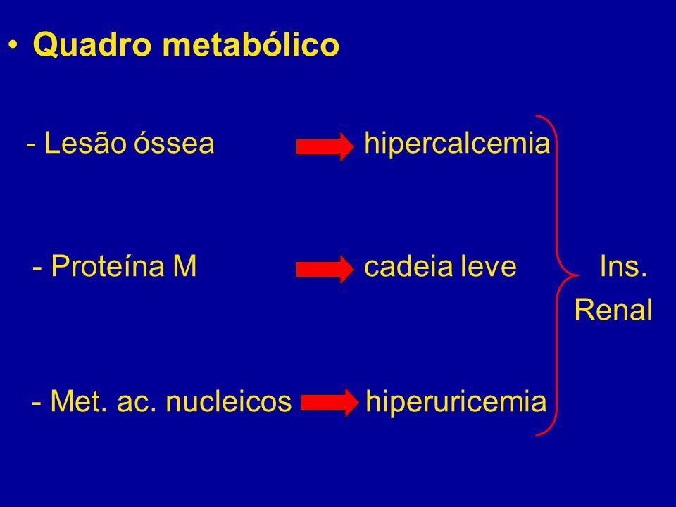 Quadro metabólico - Lesão óssea hipercalcemia - Proteína M cadeia leve Ins. Renal - Met. ac. nucleicos hiperuricemia