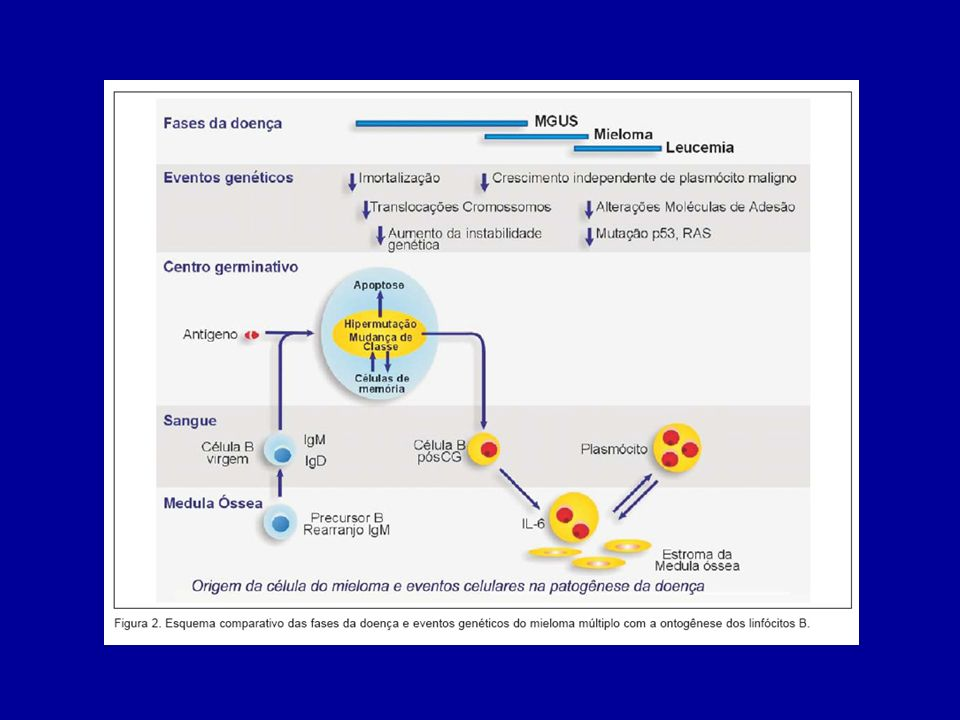 Estudo medula óssea - Infiltrações plasmáticas com atipias - Anaplasia * -Citogenética - cromossomo 13 * * Fatores prognósticos
