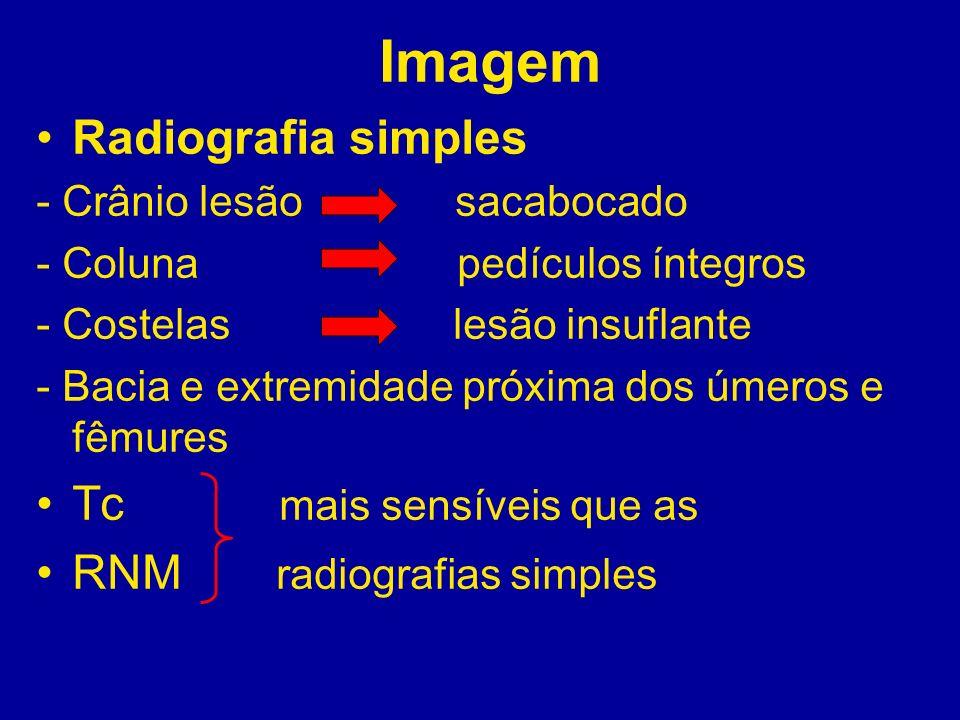 Imagem Radiografia simples - Crânio lesão sacabocado - Coluna pedículos íntegros - Costelas lesão insuflante - Bacia e extremidade próxima dos úmeros