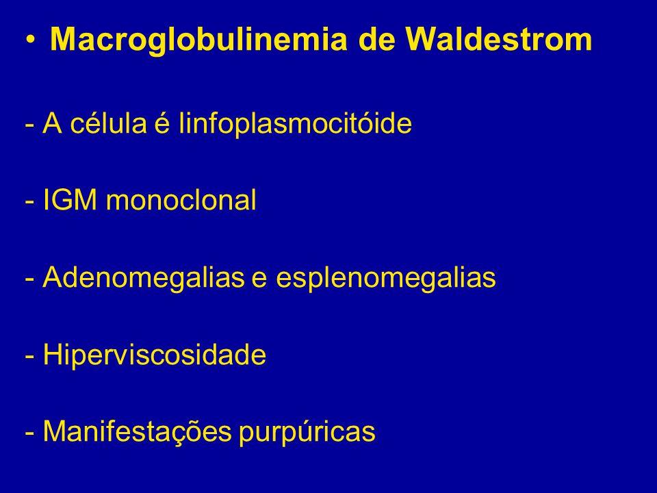 Macroglobulinemia de Waldestrom - A célula é linfoplasmocitóide - IGM monoclonal - Adenomegalias e esplenomegalias - Hiperviscosidade - Manifestações