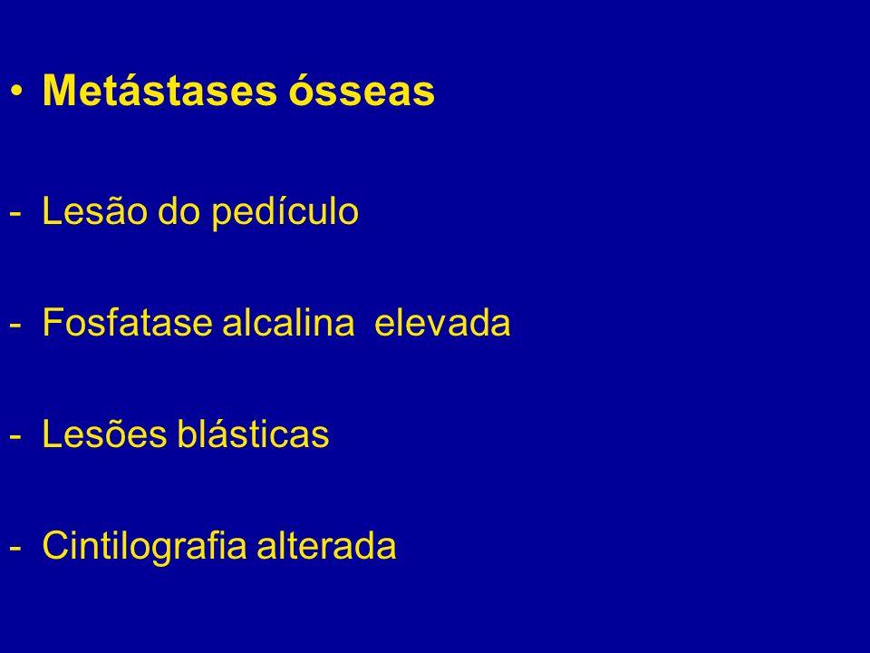 Metástases ósseas -Lesão do pedículo -Fosfatase alcalina elevada -Lesões blásticas -Cintilografia alterada