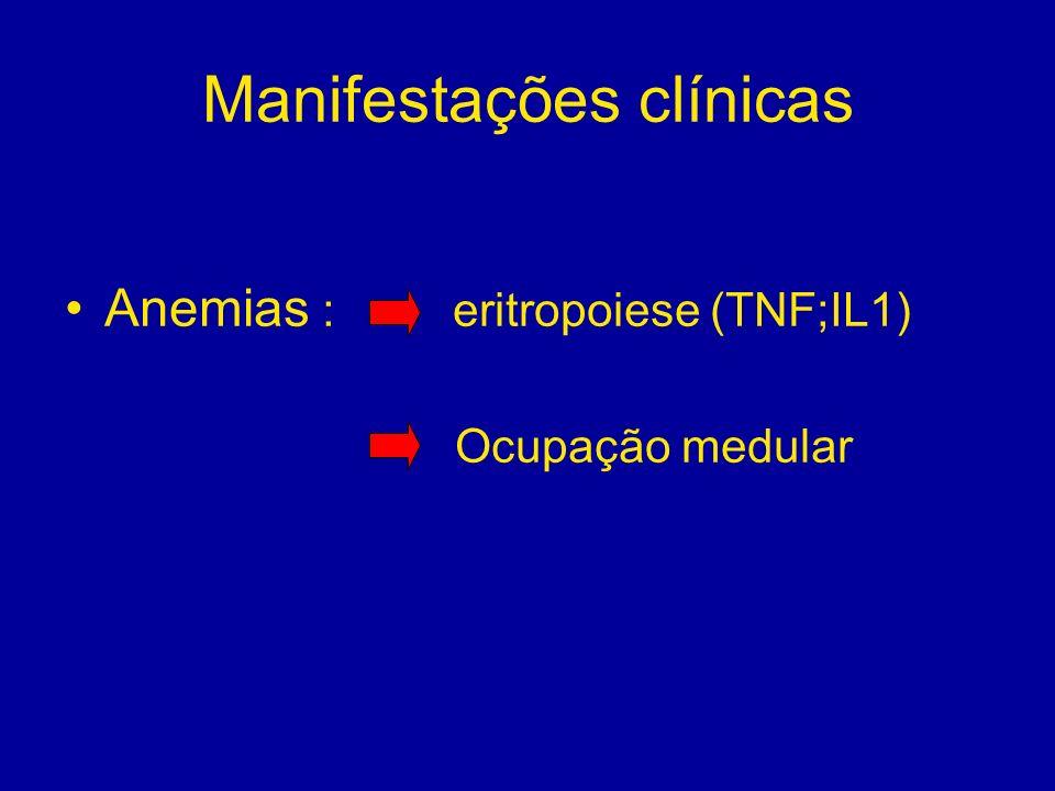 Manifestações clínicas Anemias : eritropoiese (TNF;IL1) Ocupação medular