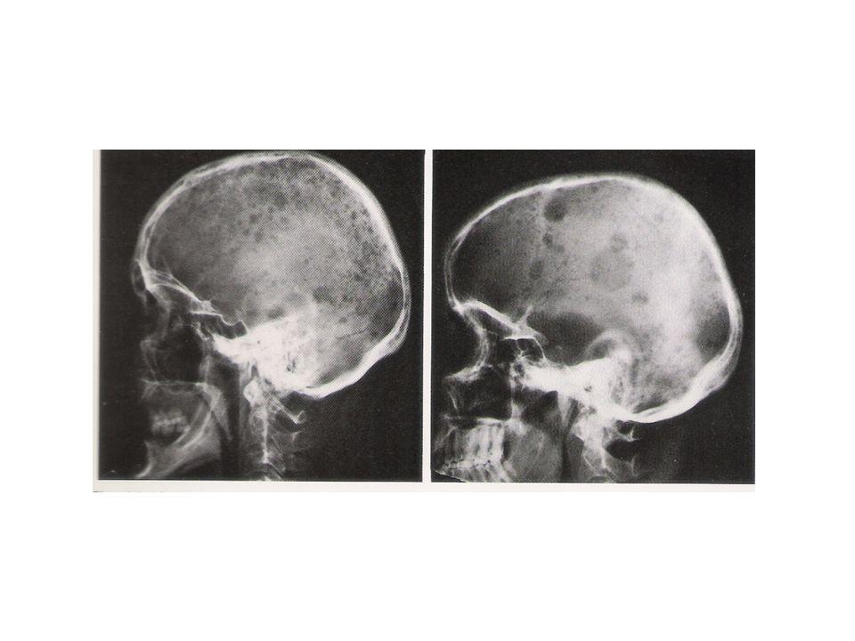 -Seguido de um ou mais fatores: Anemia Lesões líticas Osteoporose Insuficiência renal Hipercalcemia