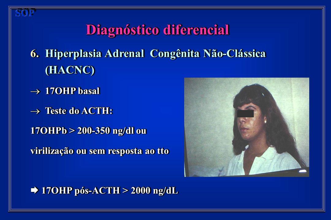 Diagnóstico diferencial 6.Hiperplasia Adrenal Congênita Não-Clássica (HACNC) 17OHP basal 17OHP basal Teste do ACTH: Teste do ACTH: 17OHPb > 200-350 ng/dl ou virilização ou sem resposta ao tto 17OHP pós-ACTH > 2000 ng/dL 17OHP pós-ACTH > 2000 ng/dL Diagnóstico diferencial 6.Hiperplasia Adrenal Congênita Não-Clássica (HACNC) 17OHP basal 17OHP basal Teste do ACTH: Teste do ACTH: 17OHPb > 200-350 ng/dl ou virilização ou sem resposta ao tto 17OHP pós-ACTH > 2000 ng/dL 17OHP pós-ACTH > 2000 ng/dL