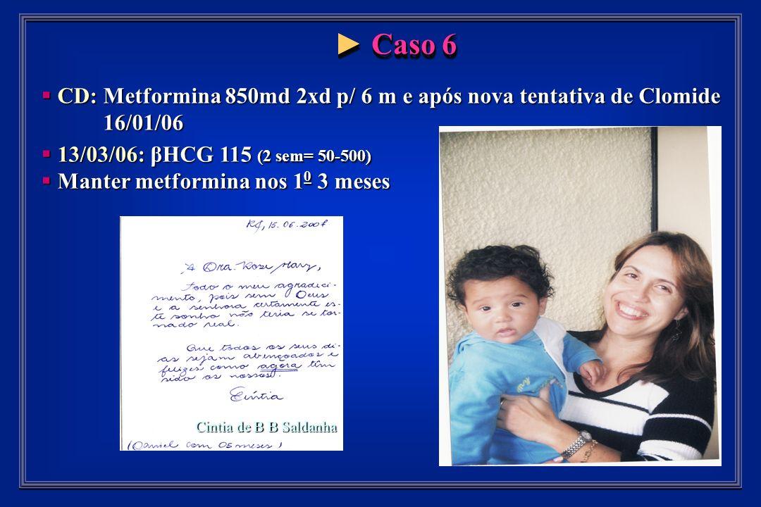 Caso 6 Caso 6 CD: Metformina 850md 2xd p/ 6 m e após nova tentativa de Clomide CD: Metformina 850md 2xd p/ 6 m e após nova tentativa de Clomide 16/01/06 16/01/06 13/03/06: βHCG 115 (2 sem= 50-500) 13/03/06: βHCG 115 (2 sem= 50-500) Manter metformina nos 1 0 3 meses Manter metformina nos 1 0 3 meses Cintia de B B Saldanha