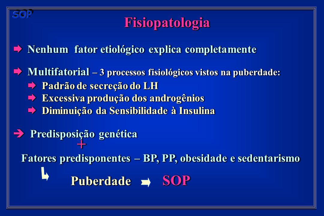 Fisiopatologia Nenhum fator etiológico explica completamente Nenhum fator etiológico explica completamente Multifatorial – 3 processos fisiológicos vistos na puberdade: Multifatorial – 3 processos fisiológicos vistos na puberdade: Padrão de secreção do LH Padrão de secreção do LH Excessiva produção dos androgênios Excessiva produção dos androgênios Diminuição da Sensibilidade à Insulina Diminuição da Sensibilidade à Insulina Predisposição genética Predisposição genética + + Fatores predisponentes – BP, PP, obesidade e sedentarismo Fatores predisponentes – BP, PP, obesidade e sedentarismo Puberdade SOP Fisiopatologia Nenhum fator etiológico explica completamente Nenhum fator etiológico explica completamente Multifatorial – 3 processos fisiológicos vistos na puberdade: Multifatorial – 3 processos fisiológicos vistos na puberdade: Padrão de secreção do LH Padrão de secreção do LH Excessiva produção dos androgênios Excessiva produção dos androgênios Diminuição da Sensibilidade à Insulina Diminuição da Sensibilidade à Insulina Predisposição genética Predisposição genética + + Fatores predisponentes – BP, PP, obesidade e sedentarismo Fatores predisponentes – BP, PP, obesidade e sedentarismo Puberdade SOP