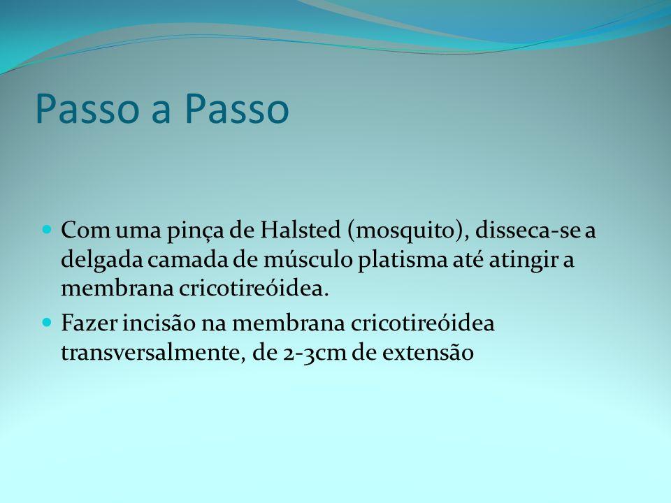 Passo a Passo Com uma pinça de Halsted (mosquito), disseca-se a delgada camada de músculo platisma até atingir a membrana cricotireóidea. Fazer incisã