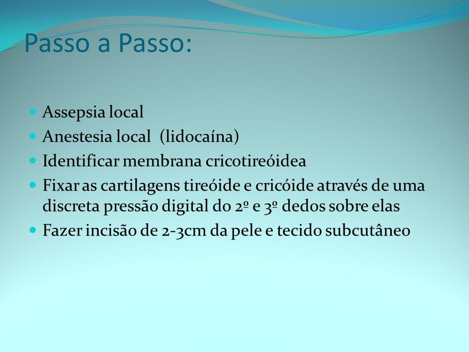 Passo a Passo: Assepsia local Anestesia local (lidocaína) Identificar membrana cricotireóidea Fixar as cartilagens tireóide e cricóide através de uma