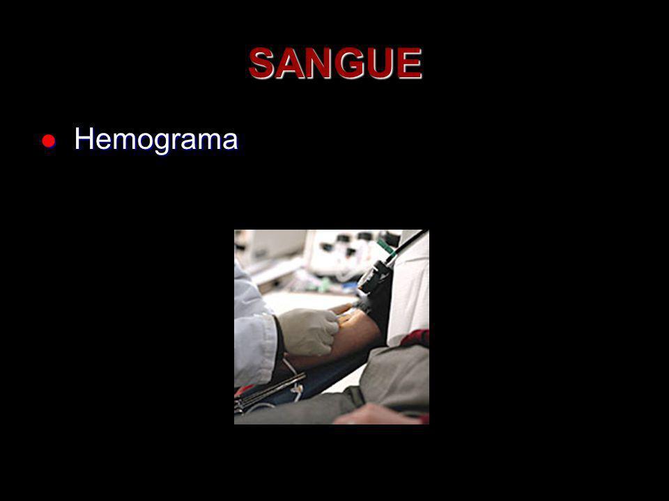 SANGUE Hemograma Hemograma