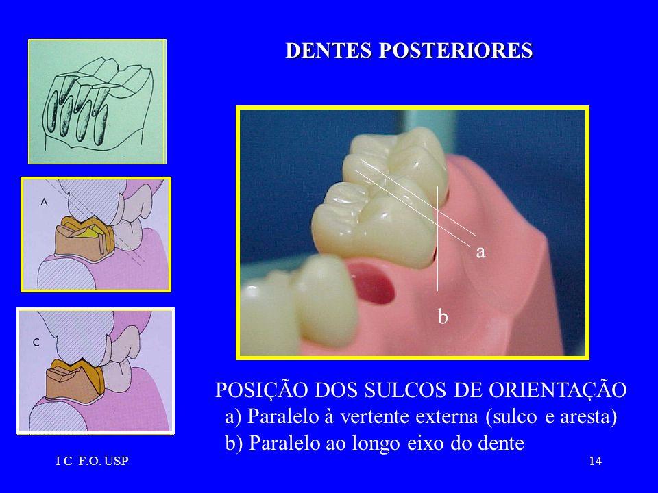 I C F.O. USP14 POSIÇÃO DOS SULCOS DE ORIENTAÇÃO a) Paralelo à vertente externa (sulco e aresta) b) Paralelo ao longo eixo do dente a b DENTES POSTERIO
