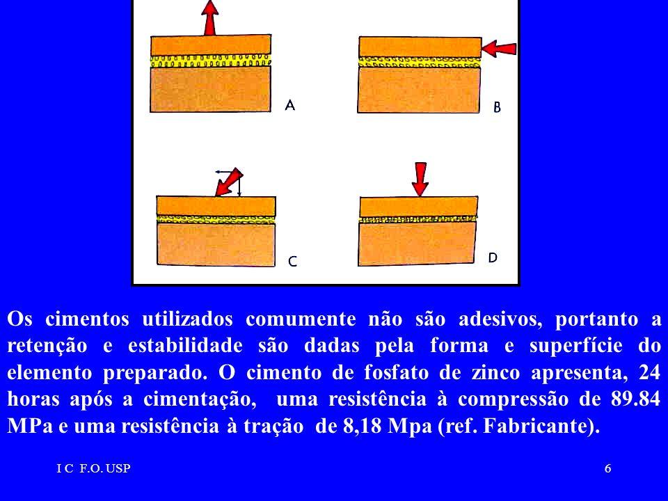 I C F.O. USP6 Os cimentos utilizados comumente não são adesivos, portanto a retenção e estabilidade são dadas pela forma e superfície do elemento prep