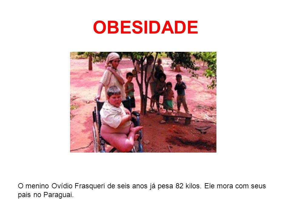 OBESIDADE O menino Ovídio Frasqueri de seis anos já pesa 82 kilos. Ele mora com seus pais no Paraguai.
