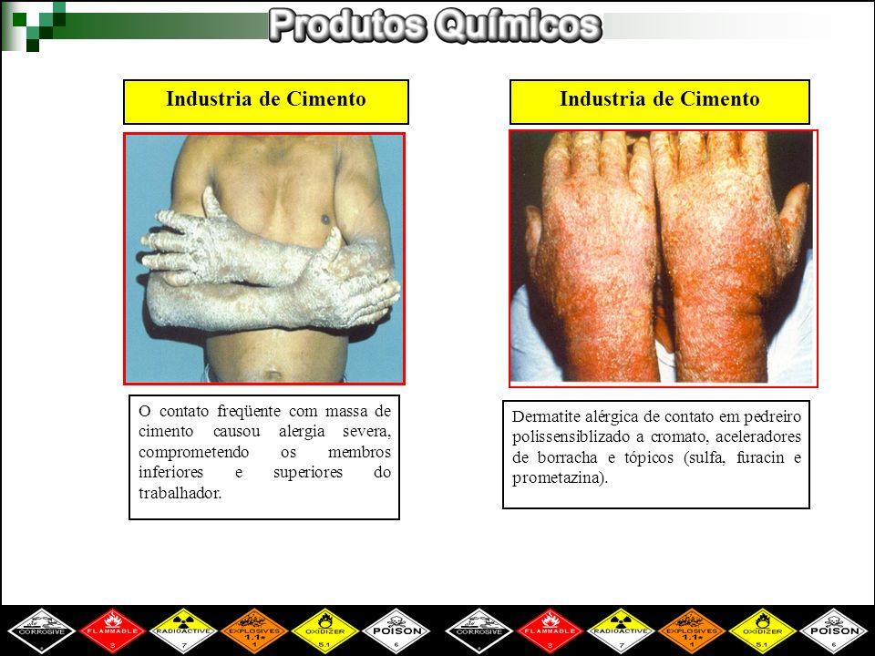 Industria de Cimento O contato freqüente com massa de cimento causou alergia severa, comprometendo os membros inferiores e superiores do trabalhador.