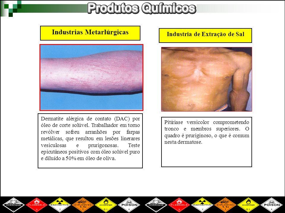 Industrias Metarlúrgicas Dermatite alérgica de contato (DAC) por óleo de corte solúvel. Trabalhador em torno revólver sofreu arranhões por farpas metá