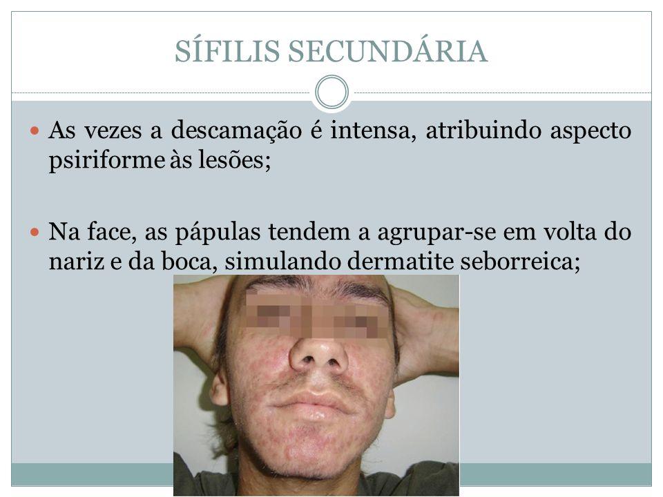SÍFILIS SECUNDÁRIA As vezes a descamação é intensa, atribuindo aspecto psiriforme às lesões; Na face, as pápulas tendem a agrupar-se em volta do nariz