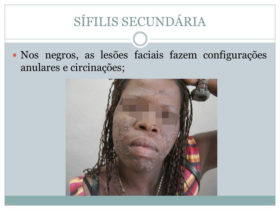 SÍFILIS SECUNDÁRIA Nos negros, as lesões faciais fazem configurações anulares e circinações;