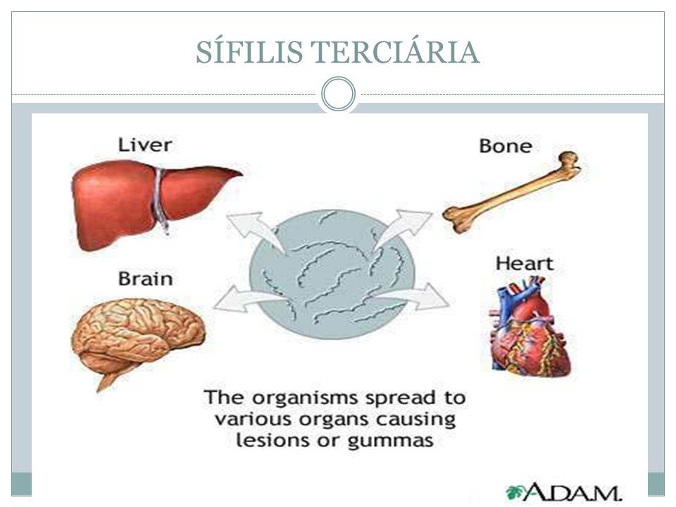 SÍFILIS TERCIÁRIA