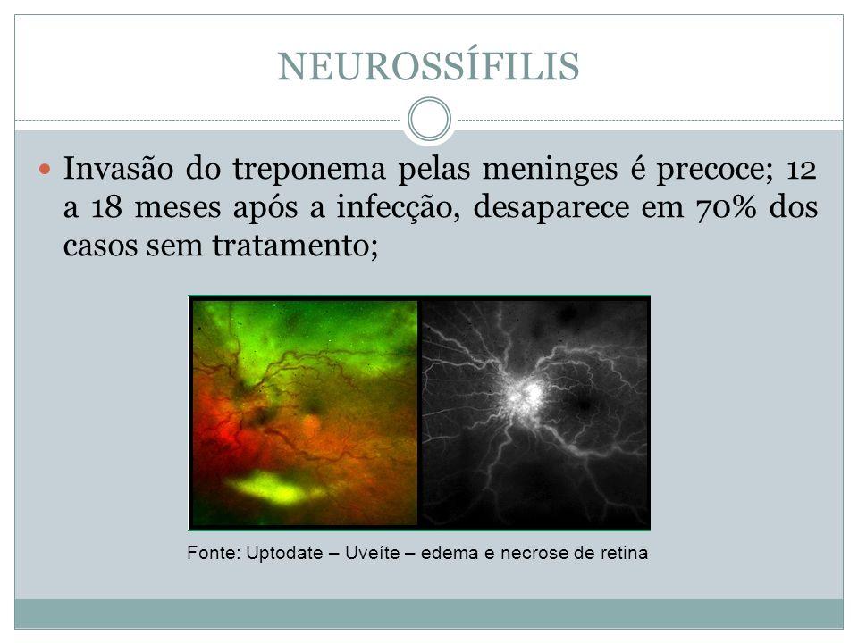 NEUROSSÍFILIS Invasão do treponema pelas meninges é precoce; 12 a 18 meses após a infecção, desaparece em 70% dos casos sem tratamento; Fonte: Uptodat