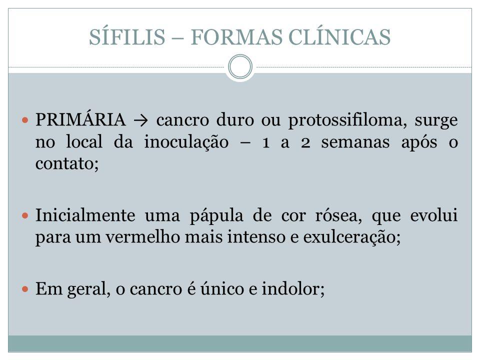 SÍFILIS PRIMÁRIA Localiza-se na região genital em 90-95% dos casos; Comumente: Homem sulco balonoprepucial, prepúcio, meato uretral Mulher pequenos lábios, parede vaginal e colo uterino Assintomático em ambos os casos;
