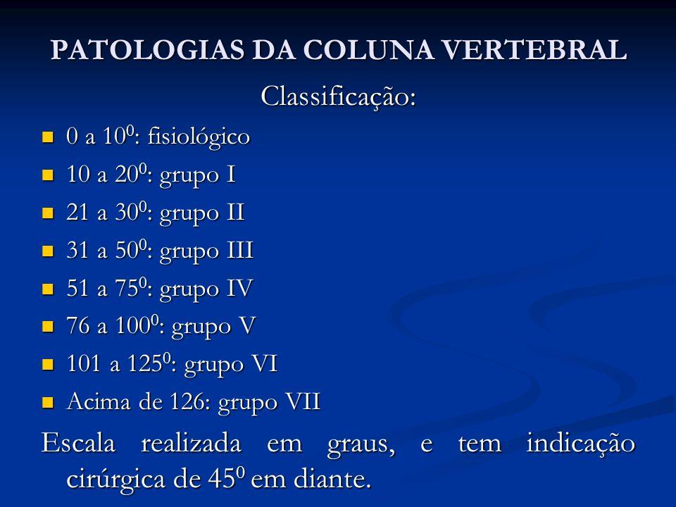 Classificação: 0 a 10 0 : fisiológico 0 a 10 0 : fisiológico 10 a 20 0 : grupo I 10 a 20 0 : grupo I 21 a 30 0 : grupo II 21 a 30 0 : grupo II 31 a 50 0 : grupo III 31 a 50 0 : grupo III 51 a 75 0 : grupo IV 51 a 75 0 : grupo IV 76 a 100 0 : grupo V 76 a 100 0 : grupo V 101 a 125 0 : grupo VI 101 a 125 0 : grupo VI Acima de 126: grupo VII Acima de 126: grupo VII Escala realizada em graus, e tem indicação cirúrgica de 45 0 em diante.