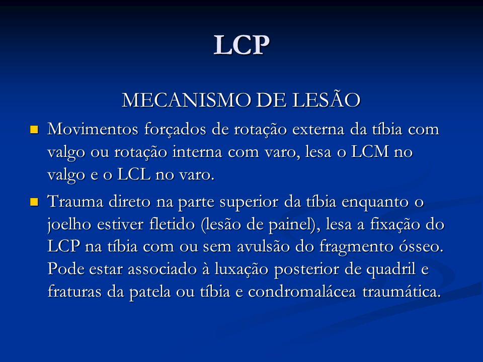 LCP MECANISMO DE LESÃO Movimentos forçados de rotação externa da tíbia com valgo ou rotação interna com varo, lesa o LCM no valgo e o LCL no varo.