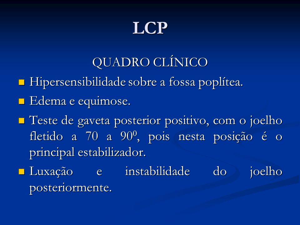 LCP QUADRO CLÍNICO Hipersensibilidade sobre a fossa poplítea.