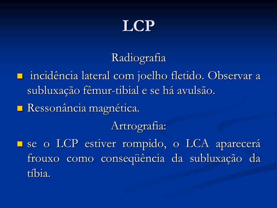 LCP Radiografia incidência lateral com joelho fletido.
