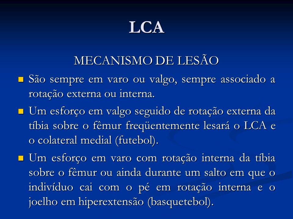 LCA MECANISMO DE LESÃO São sempre em varo ou valgo, sempre associado a rotação externa ou interna.