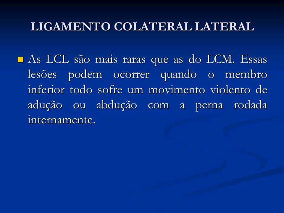 LIGAMENTO COLATERAL LATERAL As LCL são mais raras que as do LCM.