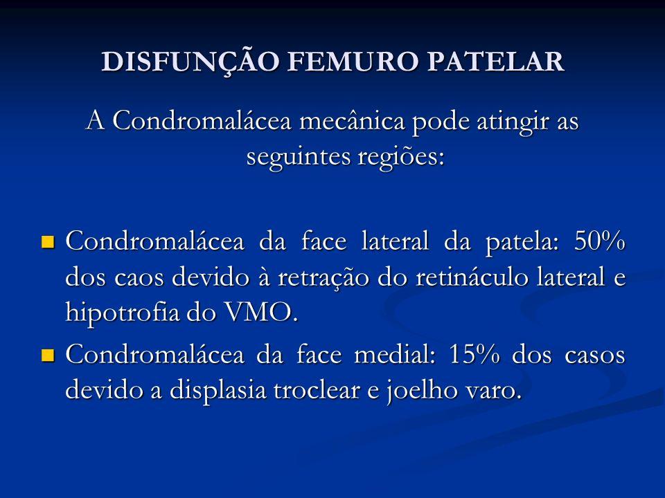 DISFUNÇÃO FEMURO PATELAR A Condromalácea mecânica pode atingir as seguintes regiões: Condromalácea da face lateral da patela: 50% dos caos devido à retração do retináculo lateral e hipotrofia do VMO.