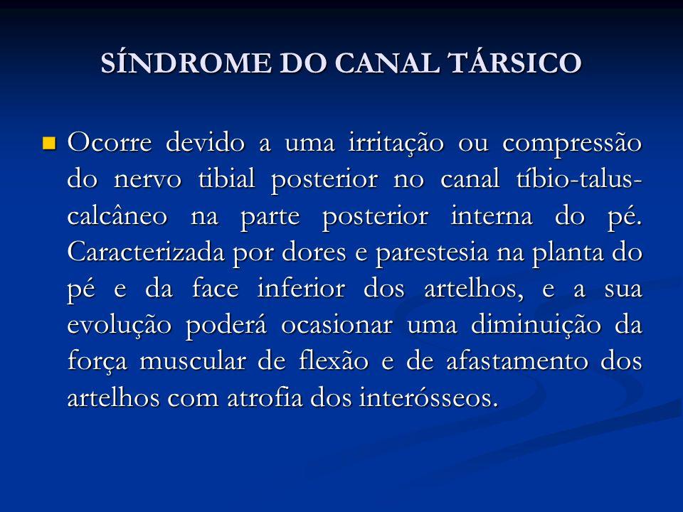 SÍNDROME DO CANAL TÁRSICO Ocorre devido a uma irritação ou compressão do nervo tibial posterior no canal tíbio-talus- calcâneo na parte posterior interna do pé.
