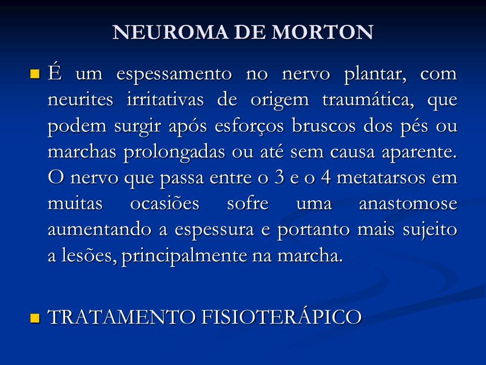 NEUROMA DE MORTON É um espessamento no nervo plantar, com neurites irritativas de origem traumática, que podem surgir após esforços bruscos dos pés ou marchas prolongadas ou até sem causa aparente.