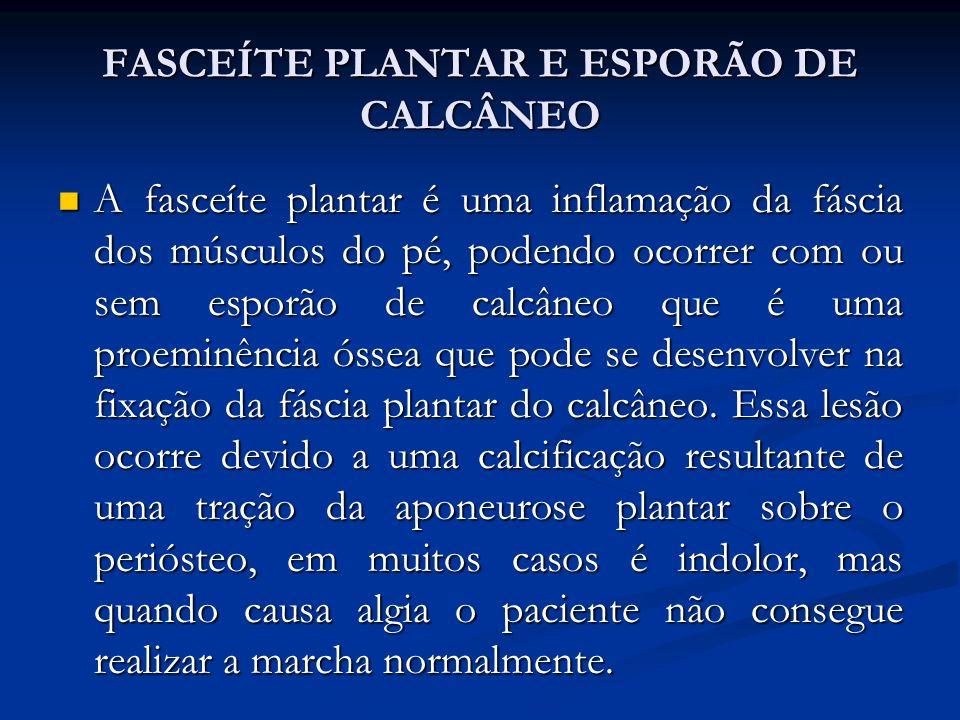 FASCEÍTE PLANTAR E ESPORÃO DE CALCÂNEO A fasceíte plantar é uma inflamação da fáscia dos músculos do pé, podendo ocorrer com ou sem esporão de calcâneo que é uma proeminência óssea que pode se desenvolver na fixação da fáscia plantar do calcâneo.