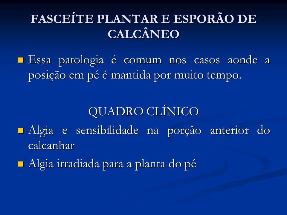 FASCEÍTE PLANTAR E ESPORÃO DE CALCÂNEO Essa patologia é comum nos casos aonde a posição em pé é mantida por muito tempo.