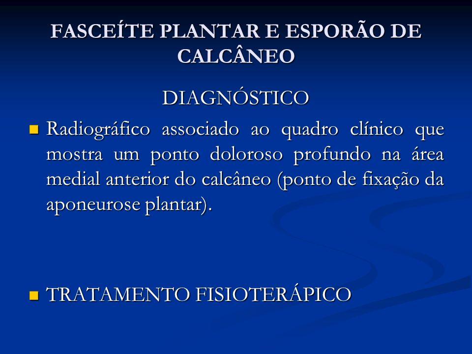 FASCEÍTE PLANTAR E ESPORÃO DE CALCÂNEO DIAGNÓSTICO Radiográfico associado ao quadro clínico que mostra um ponto doloroso profundo na área medial anterior do calcâneo (ponto de fixação da aponeurose plantar).