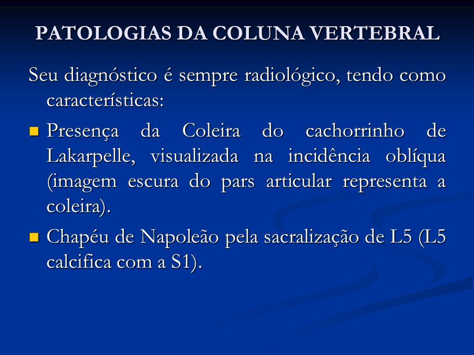 PATOLOGIAS DA COLUNA VERTEBRAL Seu diagnóstico é sempre radiológico, tendo como características: Presença da Coleira do cachorrinho de Lakarpelle, visualizada na incidência oblíqua (imagem escura do pars articular representa a coleira).