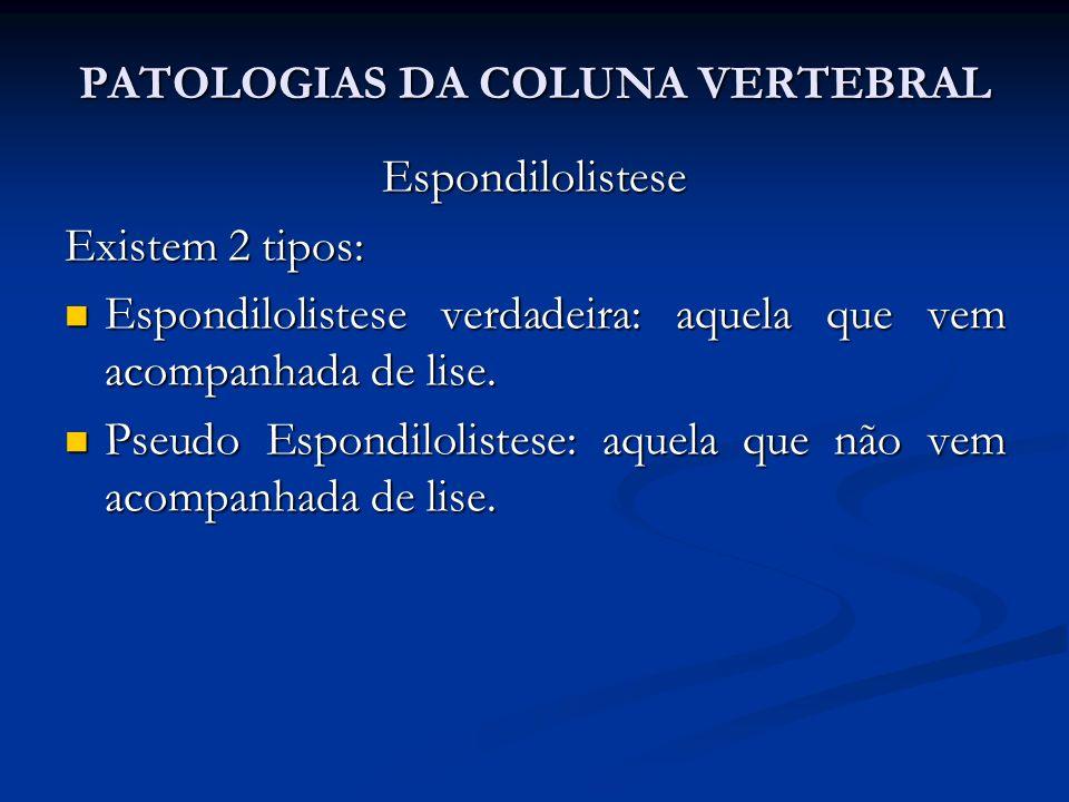 PATOLOGIAS DA COLUNA VERTEBRAL Espondilolistese Existem 2 tipos: Espondilolistese verdadeira: aquela que vem acompanhada de lise.