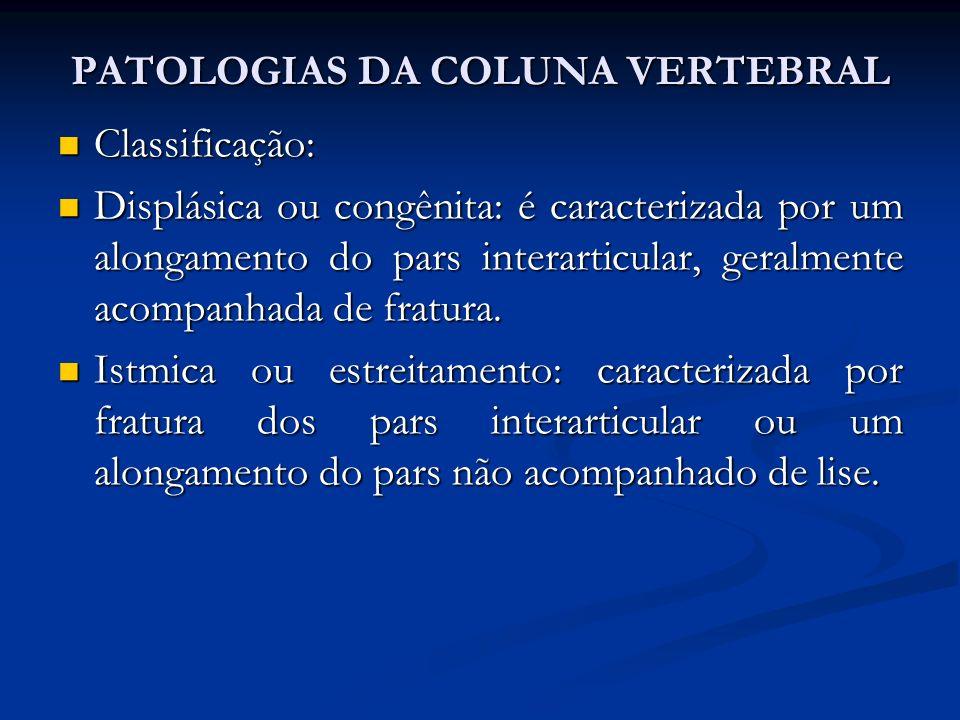 Classificação: Classificação: Displásica ou congênita: é caracterizada por um alongamento do pars interarticular, geralmente acompanhada de fratura.