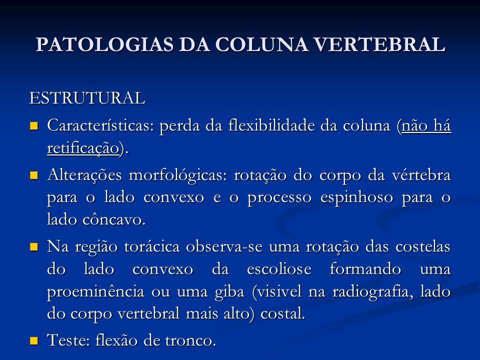 PATOLOGIAS DA COLUNA VERTEBRAL Escolise em S lombar, sendo primaria a maior costela.