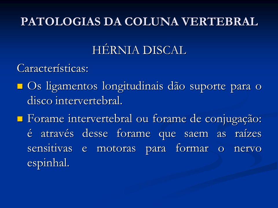 PATOLOGIAS DA COLUNA VERTEBRAL HÉRNIA DISCAL Características: Os ligamentos longitudinais dão suporte para o disco intervertebral.