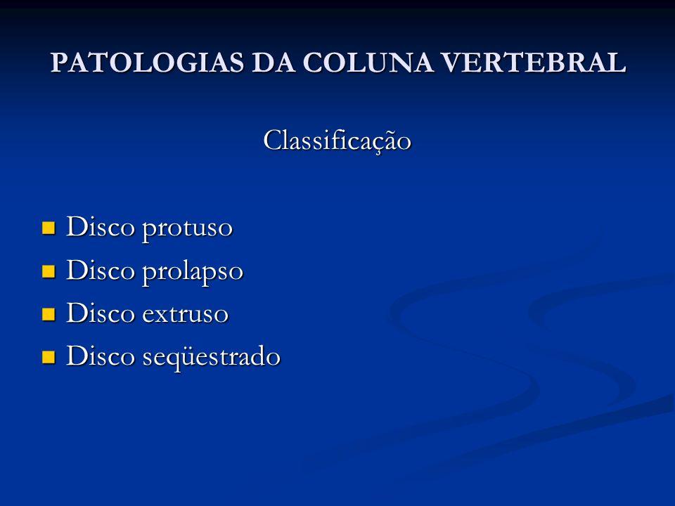 Classificação Disco protuso Disco protuso Disco prolapso Disco prolapso Disco extruso Disco extruso Disco seqüestrado Disco seqüestrado