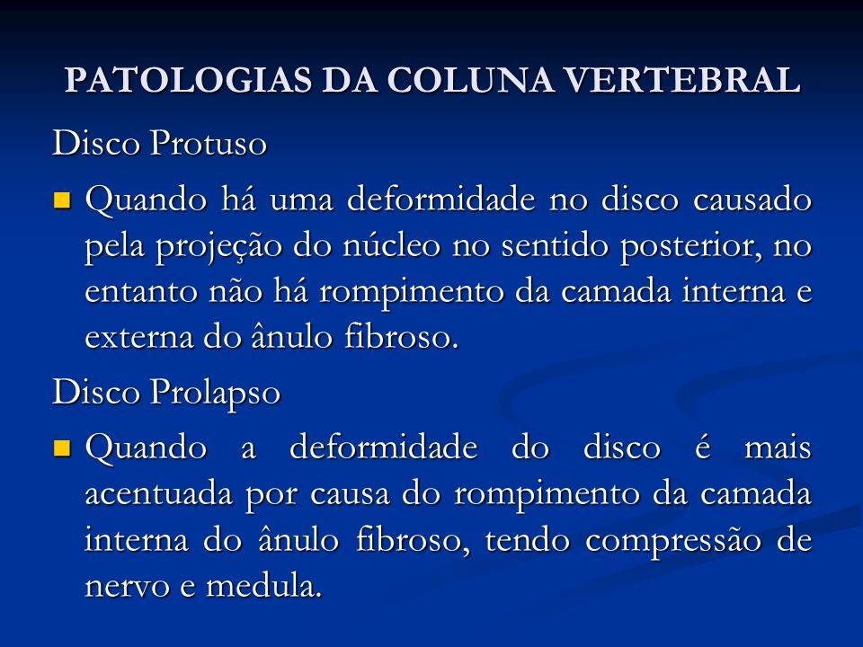 PATOLOGIAS DA COLUNA VERTEBRAL Disco Protuso Quando há uma deformidade no disco causado pela projeção do núcleo no sentido posterior, no entanto não há rompimento da camada interna e externa do ânulo fibroso.