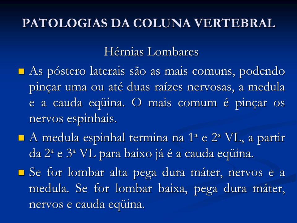 PATOLOGIAS DA COLUNA VERTEBRAL Hérnias Lombares As póstero laterais são as mais comuns, podendo pinçar uma ou até duas raízes nervosas, a medula e a cauda eqüina.