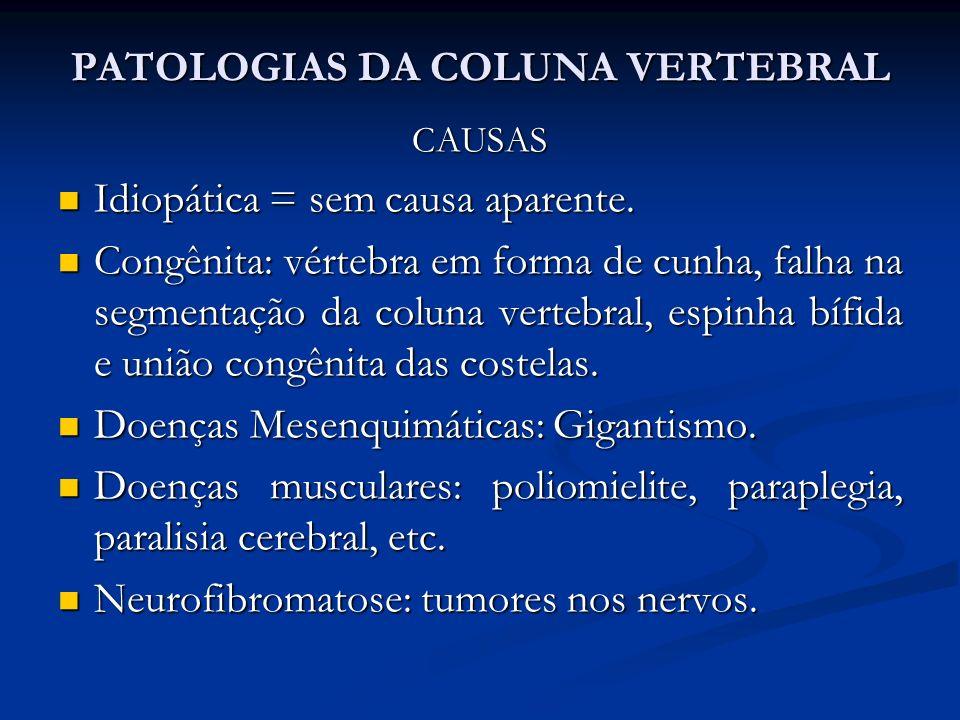 PATOLOGIAS DA COLUNA VERTEBRAL CAUSAS Idiopática = sem causa aparente.